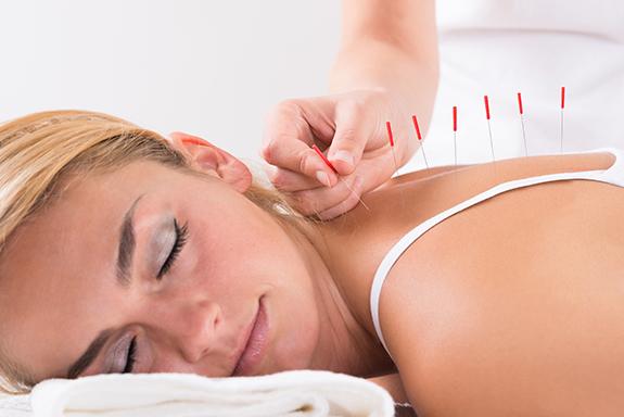 Akupunktur die bei einer Frau am Rücken durchgeführt wird.
